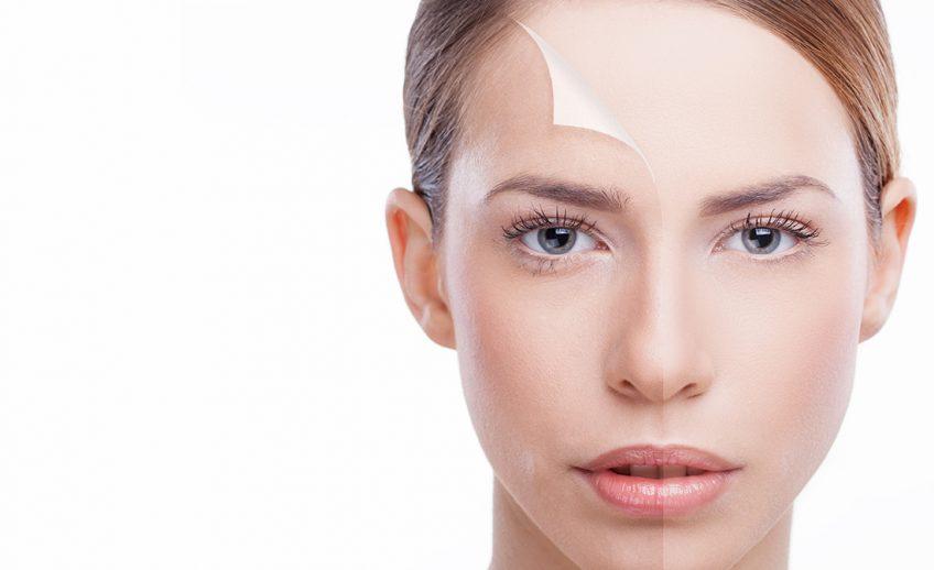Hijaluronski skin booster